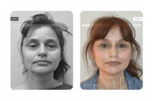 Fotos antes y después de un lifting facial de incisión corta