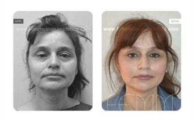 Lifting facial · Caso 3