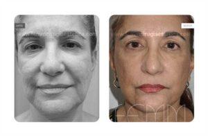 Fotografías antes y después de un mini lifting o lifting de incisión corta
