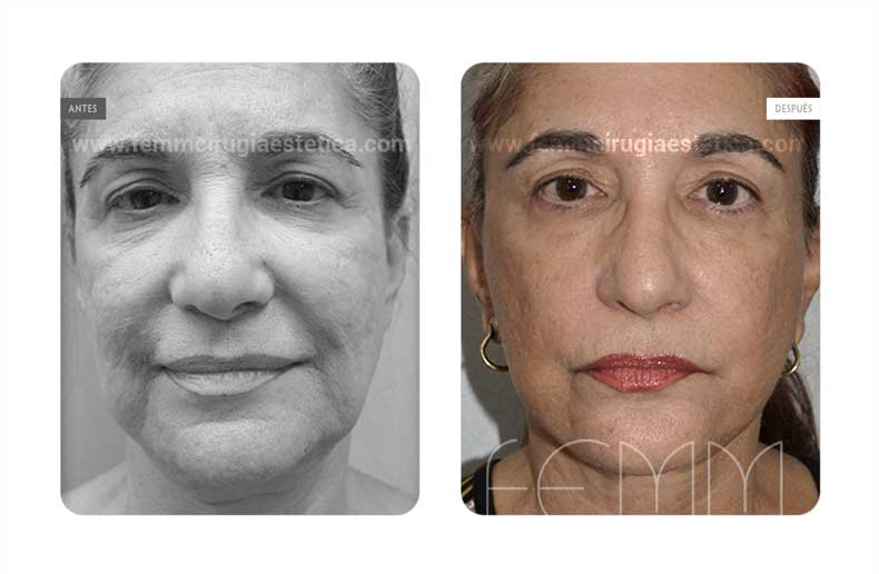Lifting facial y Lipofilling Facial · Caso 4 Foto 1