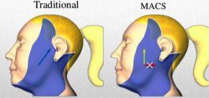 Diferencia entre el lifting facial tradicional y el minilifting MACS