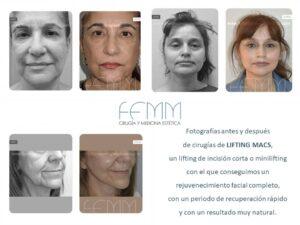Fotografías antes y después de cirugías de LIFTING MACS, un lifting de incisión corta o minilifting con el que conseguimos un rejuvenecimiento facial completo, con un periodo de recuperación rápido y con un resultado muy natural.