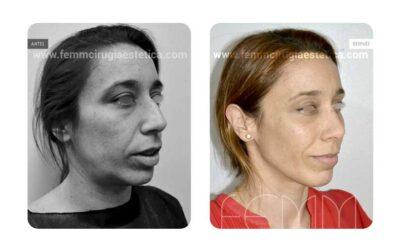 Lipofilling facial · Caso 3