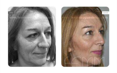 Lipofilling Facial · Caso 7