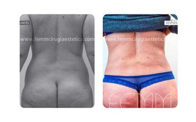 Liposucción de cartucheras, flancos y muslos · Caso 8