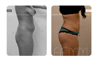 Liposucción-lipoescultura de abdomen · Caso 7