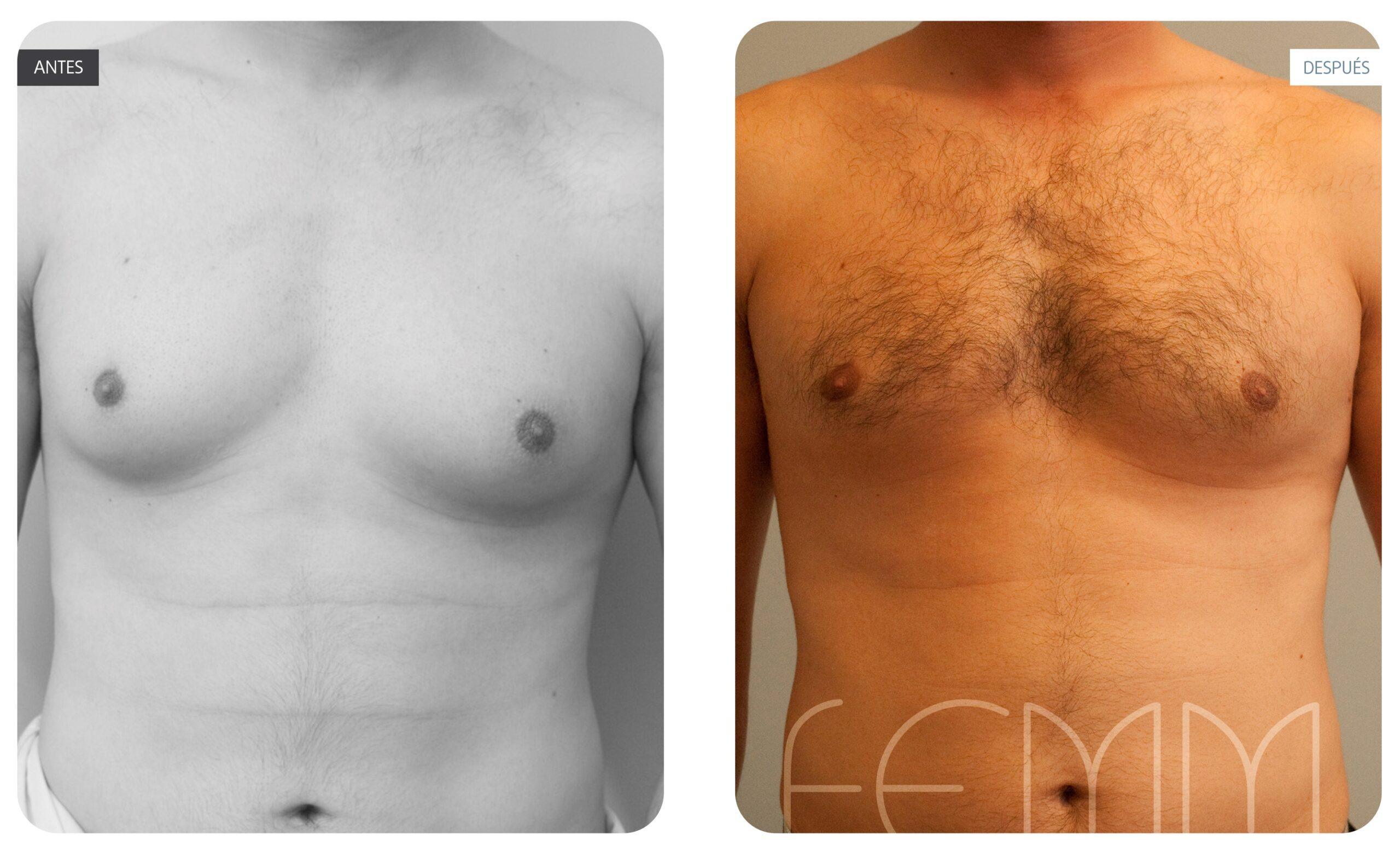 Caso clínico con fotos antes y después de una ginecomastia