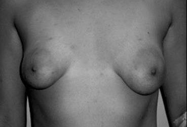 Mama o pecho tuberoso