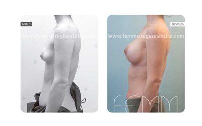 Corrección de pecho tuberoso y asimetría mamaria · Caso 4