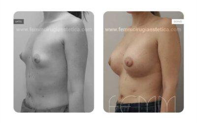 Corrección de pecho tuberoso · Caso 11