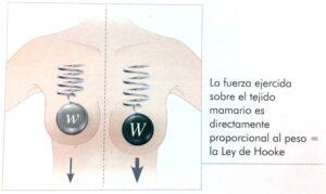 Las prótesis B-Lite pesan un 30% menos.
