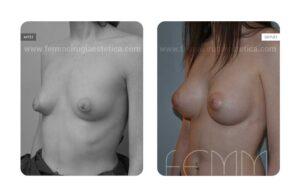 Foto oblicua izquierda antes y después de corrección de pecho tuberoso