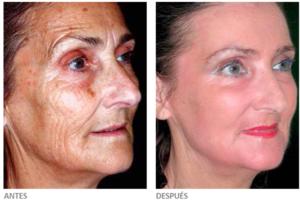 Fotografías antes y después tras un peeling profundo. Cortesía de Sellaesthetics.