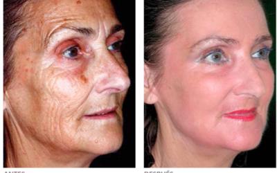 Cómo tratar las manchas de la edad