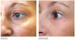 Fotografías antes y después de un peeling profundo. Cortesía de Sellaesthetics.