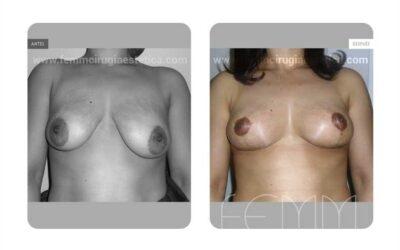 Asimetria mamaria y reducción de pecho · Caso 9