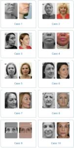 Consulta diferentes casos clínicos de rejuvenecimiento facial