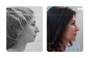 Foto antes y después de una rinoplastia