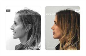 Foto lateral izquierda antes y después de una rinoplastia abierta