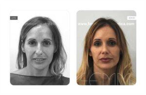 Foto frontal antes y después de una rinoplastia abierta