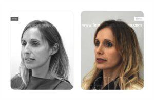 Foto oblicua izquierda antes y después de una rinoplastia abierta