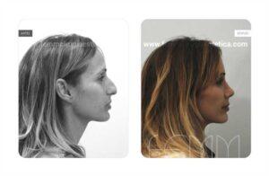 Foto lateral derecha antes y después de una rinoplastia abierta