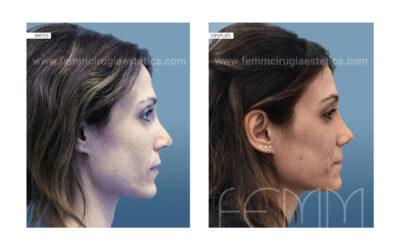 Rinoplastia secundaria / fascia temporal · Caso 55