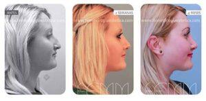 Aquí podéis ver todas las fotos antes y después de la rinoplastia de Raluca Scurtu