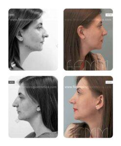Fotografías antes y después de una rinoplastia abierta, con estrechamiento de la punta nasal, acortamiento de la longitud nasal, corrección de la asimetría y la desviación intrínseca de la punta nasal.