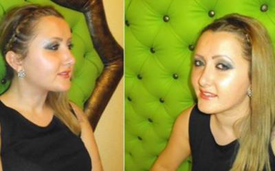 RINOPLASTIA: Testimonio de Raluca Scurtu