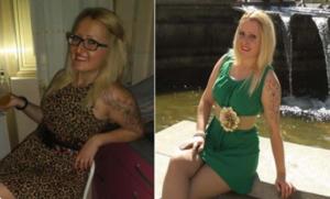 Antes y después de mi cirugía de rinoplastia
