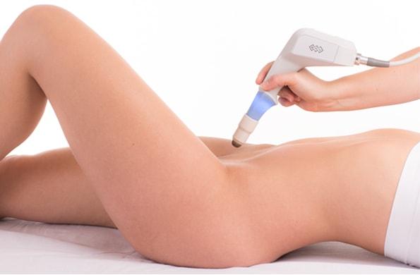 La radiofrecuencia vaginal Ultra Femme 360 es la más potente del mercado.